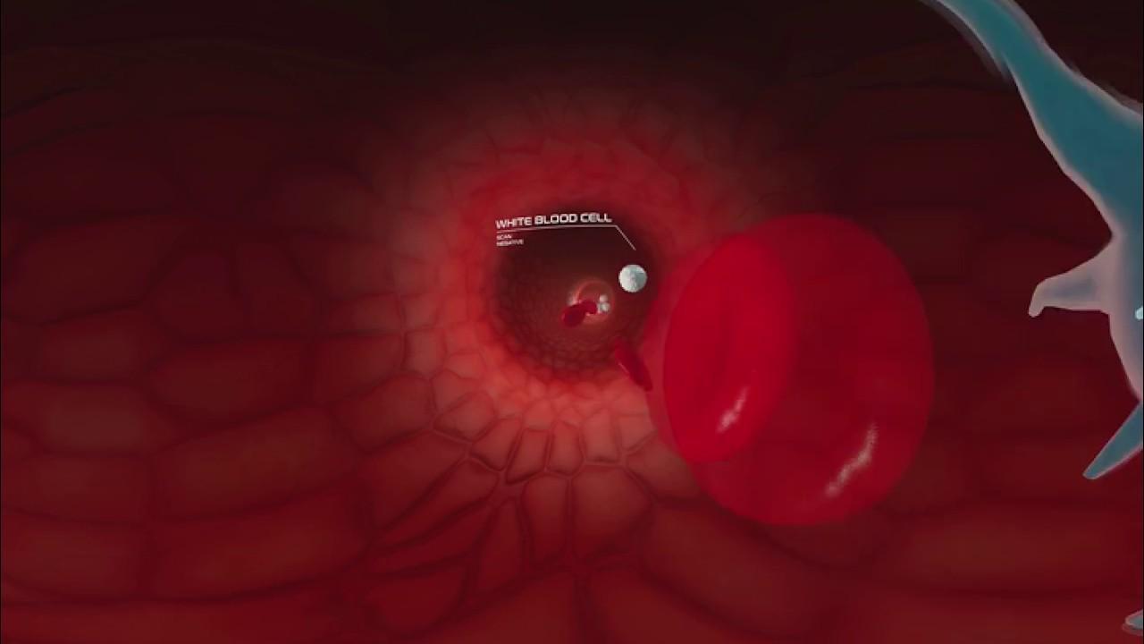 maxresdefault 10 - فیلم واقعیت مجازی عفونت جریان خون